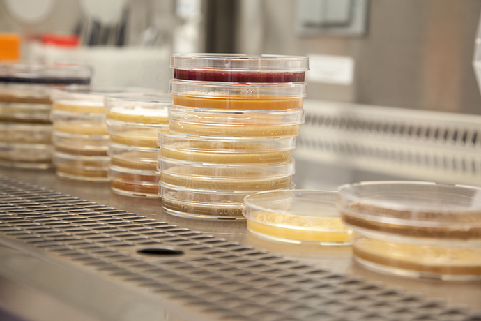 Petri dishes contain various types of bacteria