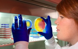 A microbiologist at the U.S. Centers for Disease Control (CDC) inspects two Petri dish culture plates that have been inoculated with methicillin-resistant Staphylococcus aureus (MRSA) bacteria